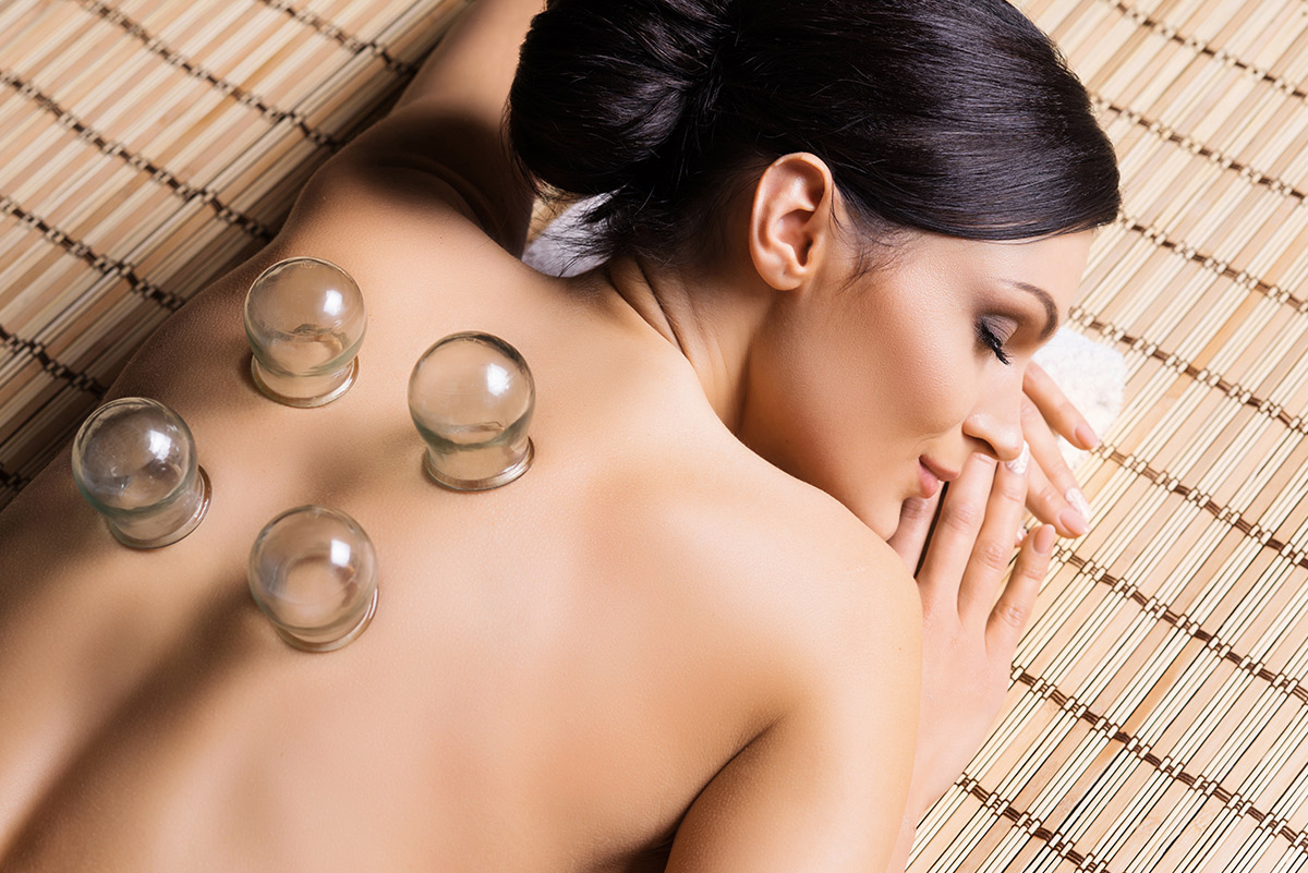 Woman getting a cupping procedure
