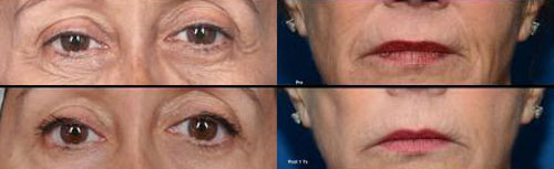 ThermiSmooth for eyes and mouth wrinkles