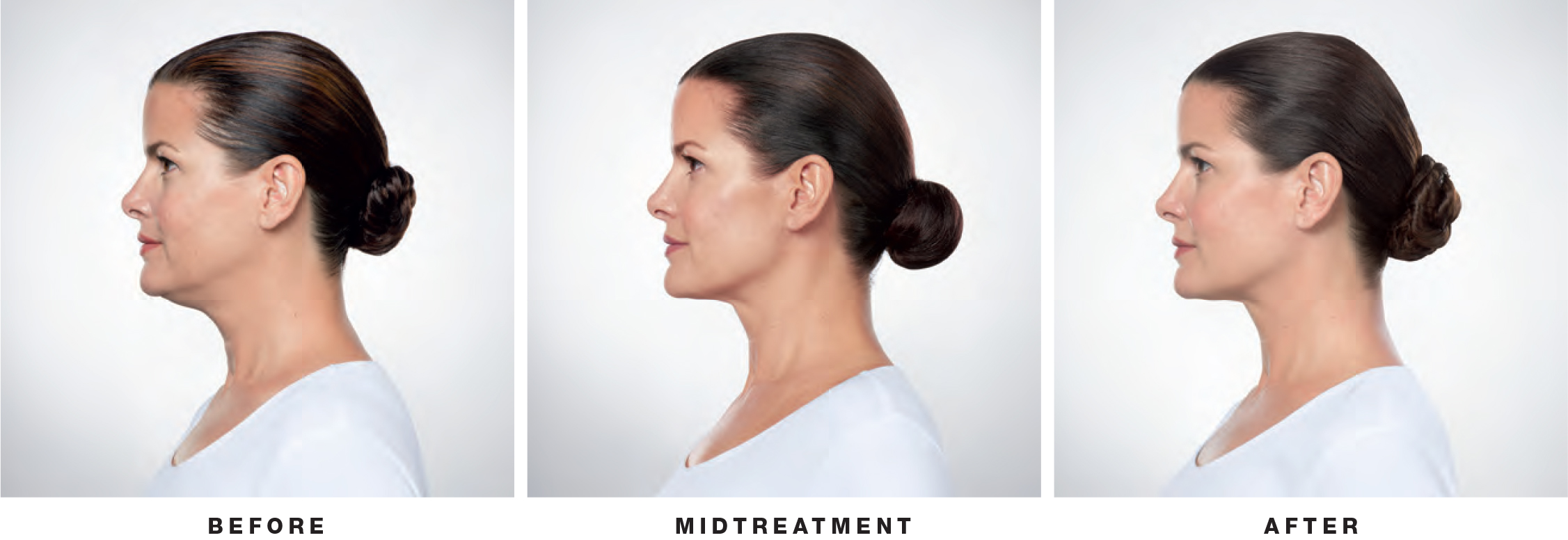 Kybella on Woman Before Midtreatment After