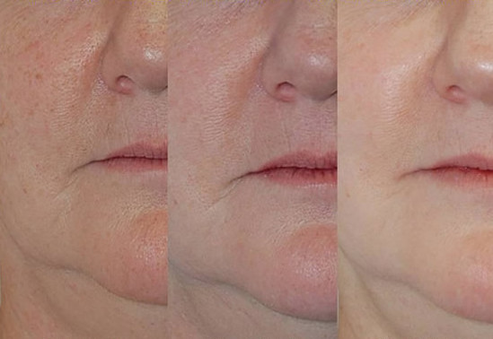 Photofacial for Spider Veins Before After