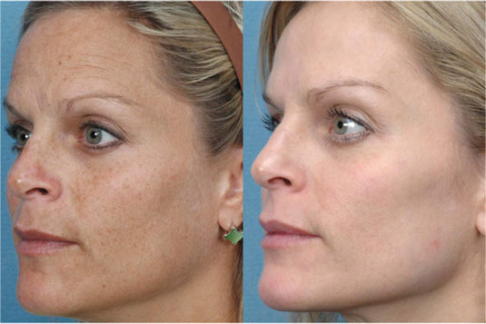 Photofacial for Sun Damage on Woman Before After