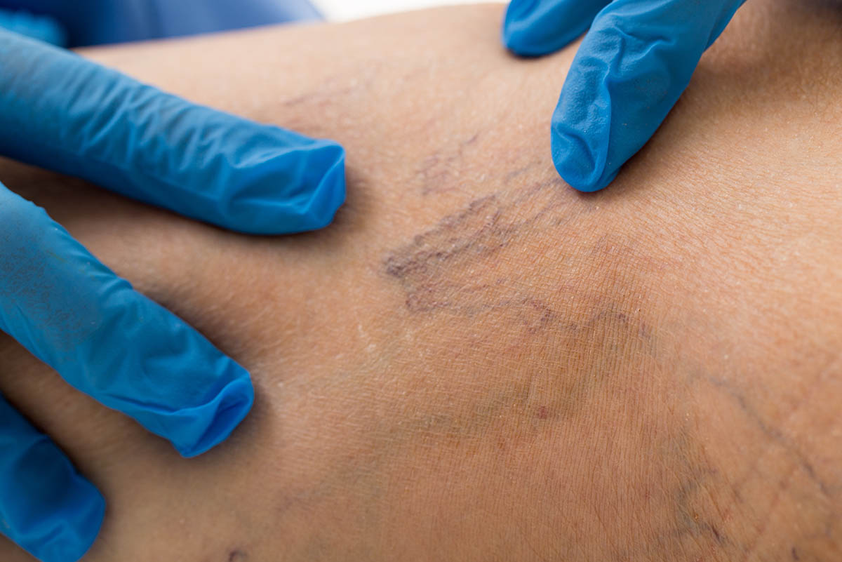 Sclerotherapy Spider Vein Treatment