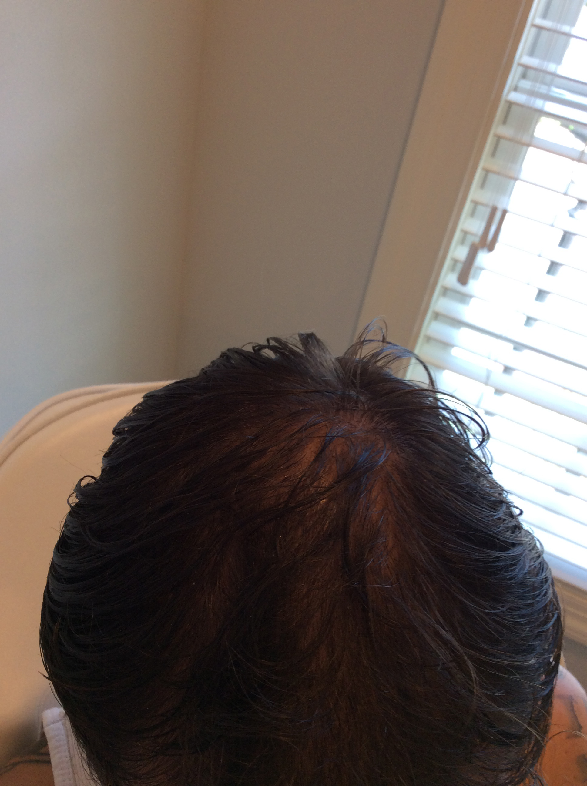 PRP Hair Restoration Final Results