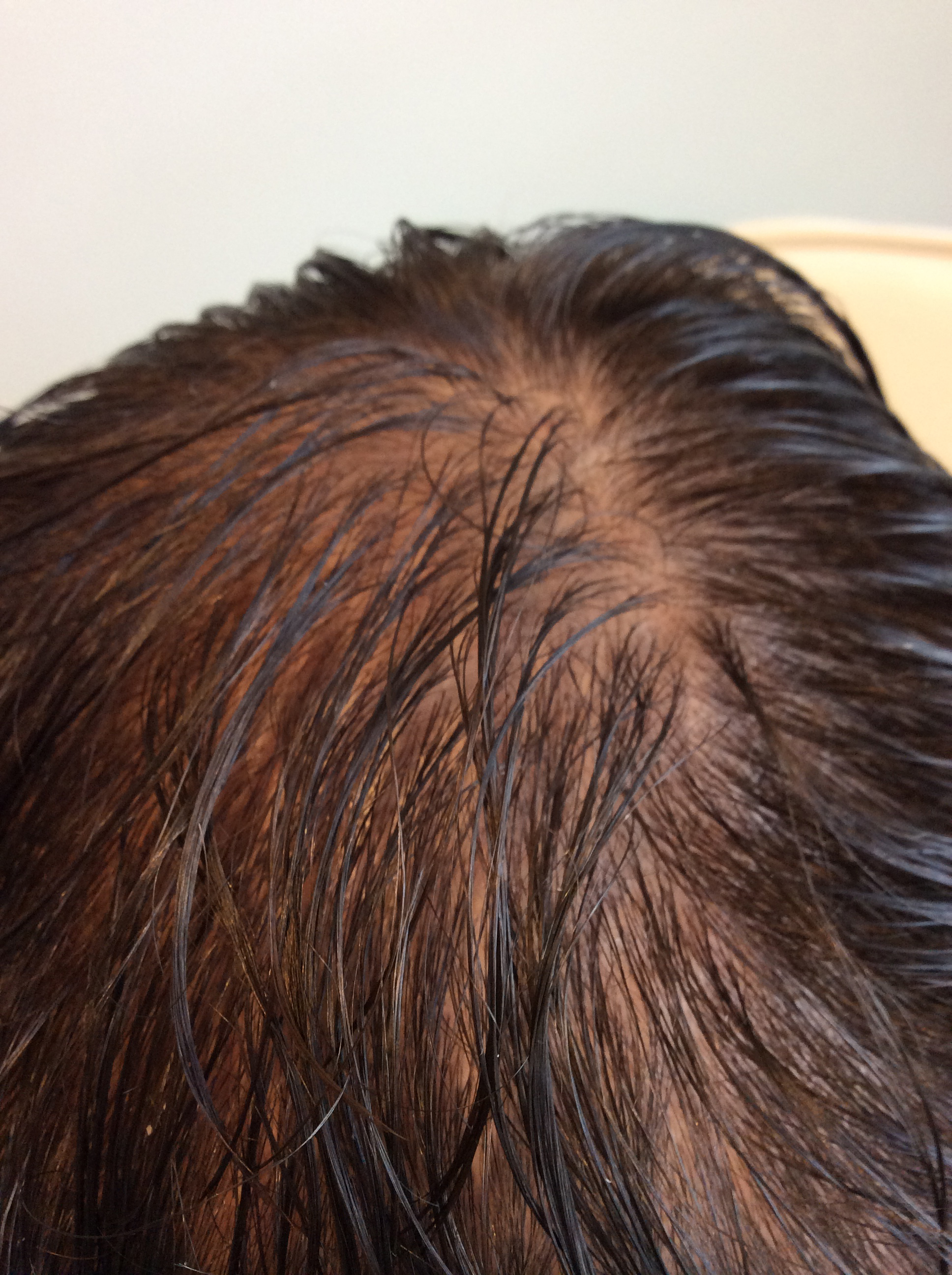 PRP Hair Restoration After Second Treatment